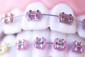 Brace Yourself: Is Orthodontic Treatment Required For A Healthy Smile?