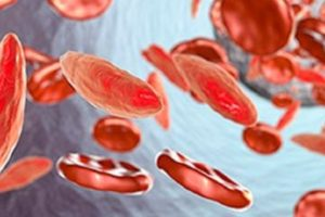 New Sickle Cell Medication Adakveo To Reduce Pain Crises